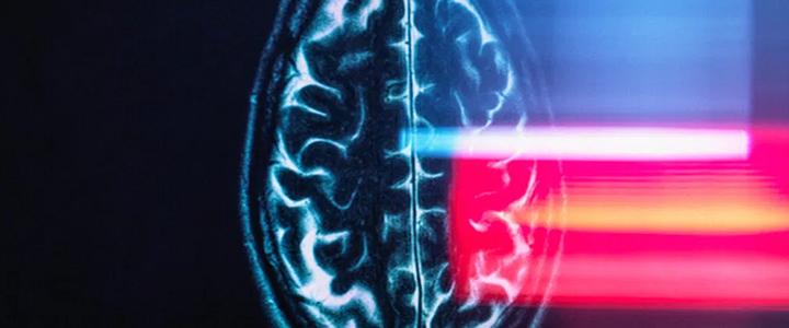 Parkinson's disease: Research identifies a potential biomarker